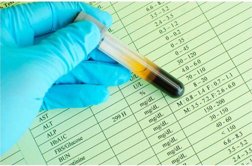 Formulaire d'analyse de sang dont glycémie et HbA1c (illustration).