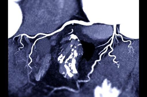 Artériographie coronaire avec produit de contraste iodé (illustration).