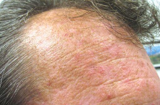 Lésions de kératose actinique sur le front d'un patient (illustration @Future FamDoc sur Wikimedia).