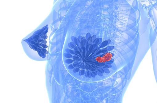 PIQRAY est un nouvel antinéoplasique indiqué dans la prise en charge de certains cancers du sein (illustration).