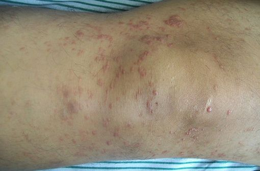 Lésions cutanées de mycosis fongoïde (illustration @Bobjgalindo sur Wikimedia).