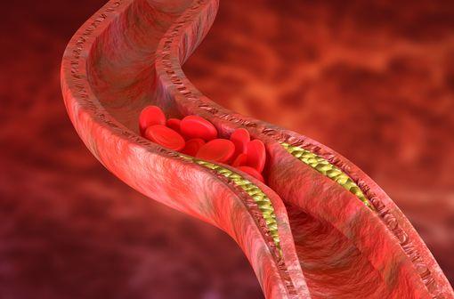 Représentation en 3D d'une plaque de cholestérol dans les parois d'une artère (illustration).
