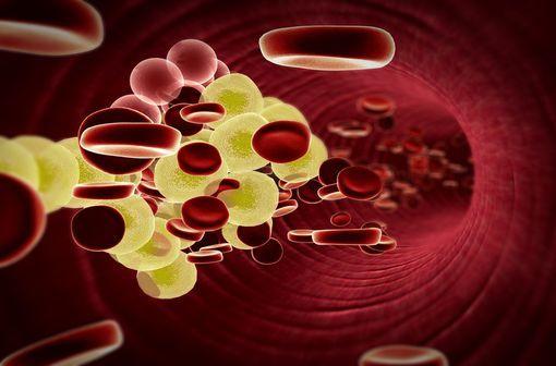 PRALUENT est indiqué chez l'adulte dans la prise en charge de l'hypercholestérolémie primaire ou de la dyslipidémie mixte, en complément d'un régime alimentaire (illustration).