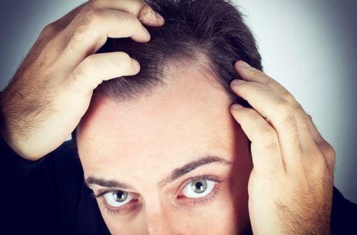 Le finastéride est utilisé dans la prise en charge de l'hypertrophie bénigne de la prostate et de la chute de cheveux chez l'homme (alopécie androgénique) [illustration].