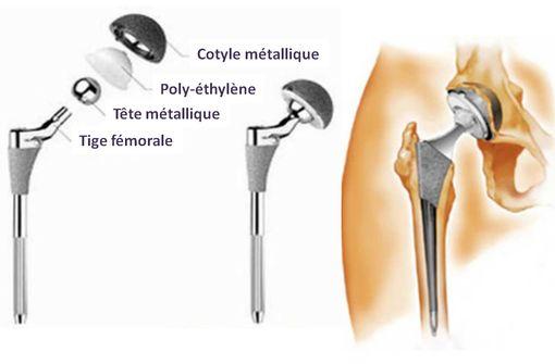 Exemple de composition d'une prothèse totale de hanche (© ANSM).