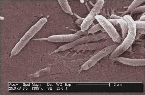 Helicobacter pylori au microscope électronique (illustration @Janice Carr sur Wikimedia).