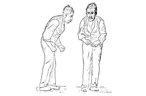 Illustration de l'attitude générale d'un patient atteint de la maladie de Parkinson par Sir William Richard Gowers, médecin neurologue et pédiatre britannique (1845-1915) [illustration @ Wikimedia].