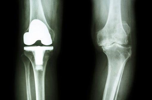 Prothèse de genou vue sur un cliché radiologique (illustration).