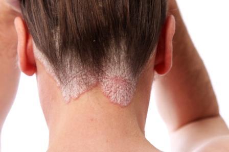 Psoriasis du cuir chevelu et de la lisière capillaire.