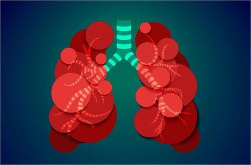L'asthme est une maladie évolutive pouvant exposer à des événements cliniques graves (exacerbations) s'il n'est pas contrôlé (illustration).
