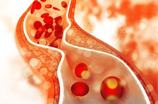 Représentation schématique d'une plaque de cholestérol dans une artère (illustration).