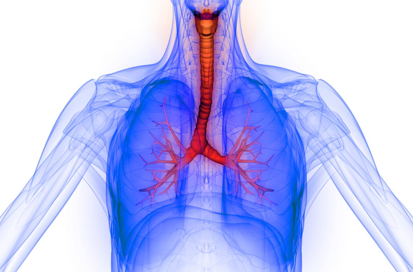 RESPREEZA est indiqué dans le traitement d'entretien du déficit sévère et documenté en alpha-1 antitrypsine chez les adultes afin de ralentir la progression de l'emphysème (illustration).