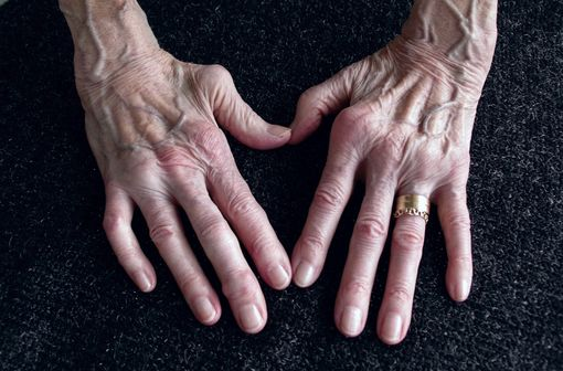 La polyarthrite rhumatoïde est la cause la plus fréquente des polyarthrites chroniques (illustration).
