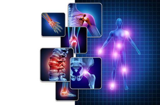 Les spondyloarthrites sont des rhumatismes inflammatoires partageant des caractéristiques communes comme des facteurs génétiques et l'atteinte privilégiée des enthèses (illustration).