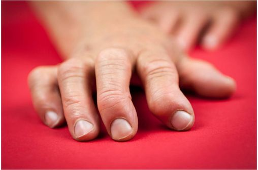 Main affectée par une polyarthrite rhumatoïde.