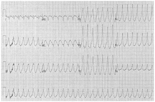 Tracé électrocardiographique de tachycardie ventriculaire (illustration @ Dr Karthik Sheka, sur Wikimedia).