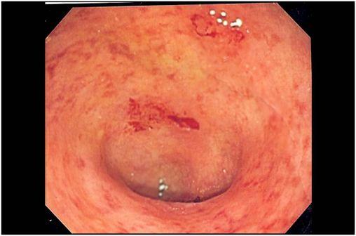 Image endoscopique de lésions de rectocolite hémorragique localisées au niveau du côlon sigmoïde (cliché @ UC granularity sur Wikimedia).