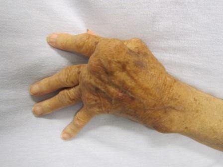 Main affectée par la polyarthrite rhumatoïde (© Wikimedia - Auteur : Dr James Heilman).