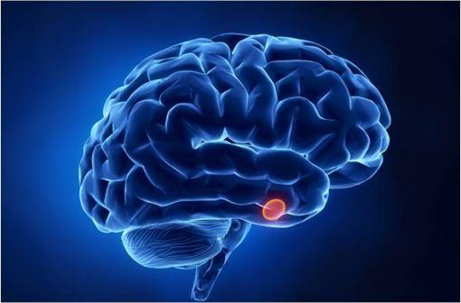La maladie de Cushing est une pathologie rare due à la présence d'un adénome corticotrope hypophysaire (illustration).