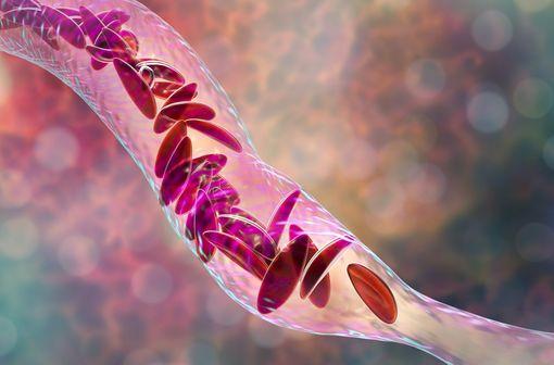 Représentation en 3D au sein d'un vaisseau d'hématies falciformes typiques de la drépanocytose (illustration).
