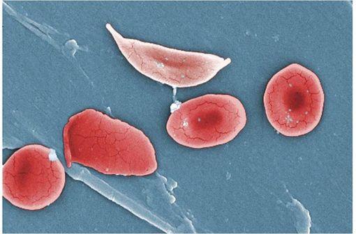 Globule rouge falciforme (pâle, en haut), typique de la drépanocytose (illustration @OpenStax College, sur Wikimedia).