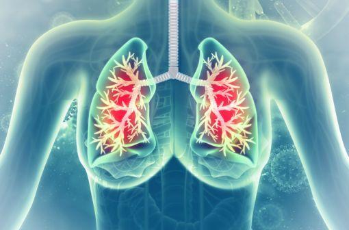 Le montélukast est indiqué en traitement additif de l'asthme léger à modéré, insuffisamment contrôlé par une corticothérapie (illustration).