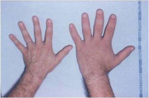 Comparaison entre une main normale (à gauche) et une main d'un patient atteint d'acromégalie (à droite) [illustration @Philippe Chanson et Sylvie Salenave sur Wikimedia].