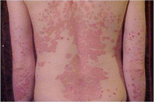 Lésions de psoriasis en plaques sévère localisées au dos d'une adolescente (illustration @Dr James Heilman, sur Wikimedia).