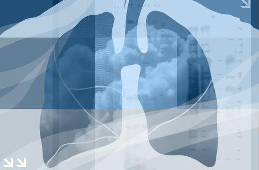 La BPCO est caractérisée par la diminution non complètement réversible des débits expiratoires et est classiquement associée à la bronchite chronique et à l'emphysème pulmonaire (illustration).