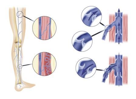 Maladie veineuse - Membres inférieurs (schéma)