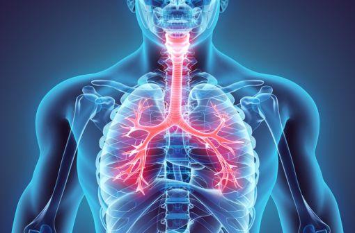 Le cancer bronchique non à petites cellules représente le type de cancer du poumon le plus fréquent, de l'ordre de 85 à 90 % de l'ensemble des cancers du poumon (illustration).