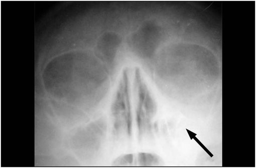 Radiographie de sinusite maxillaire gauche (illustration @Alex Khimich, sur Wikimedia).