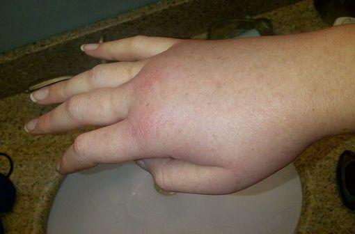 Main droite œdématiée lors d'un accès d'angio-œdème héréditaire (illustration @LucyHAE sur Wikimédia).