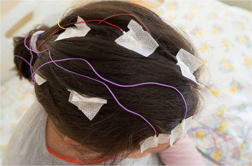 Le syndrome de Lennox-Gastaut est une forme d'épilepsie infantile difficile à traiter qui apparaît le plus souvent entre l'âge de 2 et 6 ans (illustration).