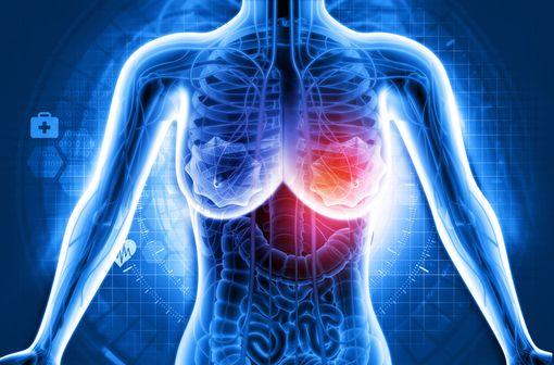 Le principal objectif recherché dans la prise en charge du cancer du sein avancé est une amélioration cliniquement significative de la survie globale des patientes, tout en maintenant ou en améliorant leur qualité de vie (illustration).