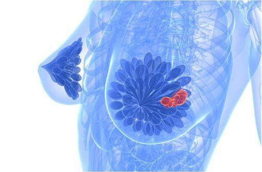Le docétaxel peut de nouveau être prescrit dans le cancer du sein infiltrant non métastatique (illustration).