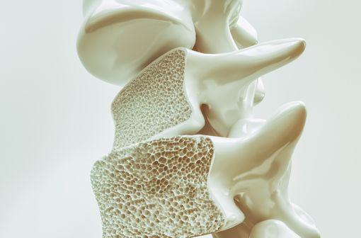 Représentation en 3D de vertèbres atteintes d'ostéoporose (illustration).