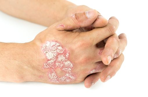 Lésions de psoriasis sur les mains d'un patient (illustration).