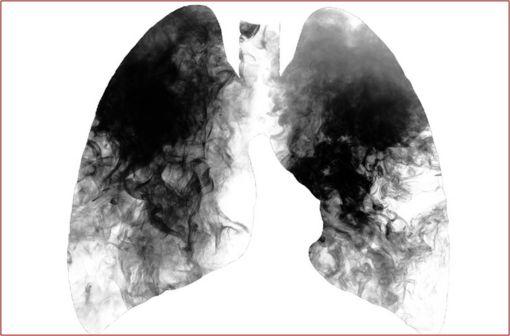 Le principal facteur de risque de BPCO est le tabac, d'autres facteurs peuvent être liés à l'environnement (exposition aux biocombustibles, à la pollution de l'air, prédisposition individuelle) [illustration].