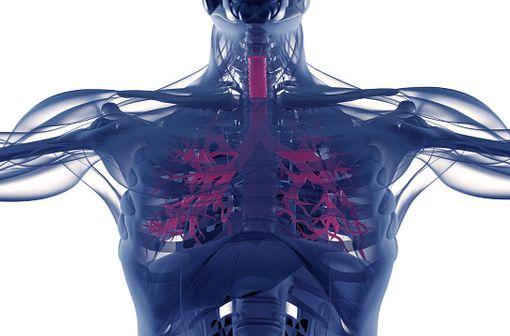 La BPCO est une cause importante de morbidité chronique et de mortalité dans le monde entier (illustration).