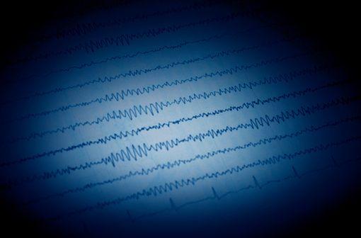 L'électro-encéphalographie (EEG) est l'unique moyen de mettre directement en évidence l'activité épileptique (illustration).