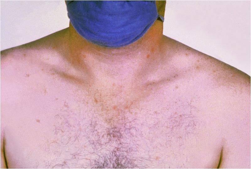 Taches rose sur la poitrine d'un patient atteint de la typhoïde (@ CDC/Armed Forces Institute of Pathology, Charles N. Farmer, Wikimedia).