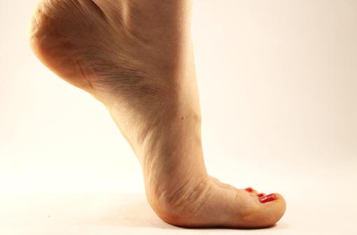 L'exercice physique adapté améliore la cicatrisation des ulcères de jambe veineux (illustration).