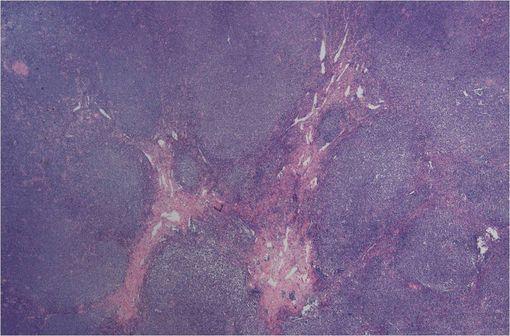 Lymphome à cellules du manteau (illustration @Gabriel Caponetti, sur Wikimedia).