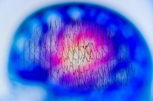 Le valproate de sodium est indiqué dans la prise en charge de l'épilepsie (illustration).