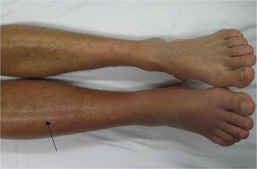 Thrombose veineuse profonde dans la jambe droite, avec rougeur et inflammation (illustration @James Heilman sur Wikimedia).
