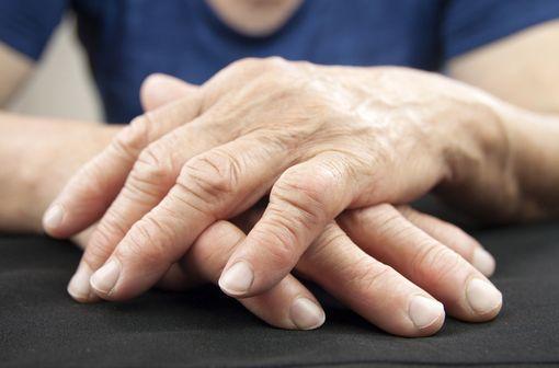 La polyarthrite rhumatoïde commence le plus souvent par un enraidissement douloureux de plusieurs articulations, généralement les poignets, les mains et les doigts (illustration).