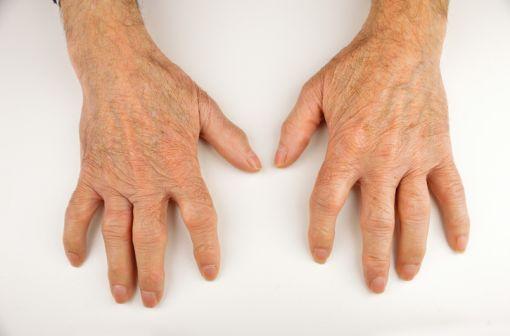 Mains déformées par des lésions de polyarthrite rhumatoïde (illustration).