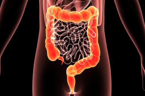 La rectocolite hémorragique (RCH) fait partie des deux principales Maladies Inflammatoires Chroniques de l'Intestin (MICI) avec la maladie de Crohn (illustration).