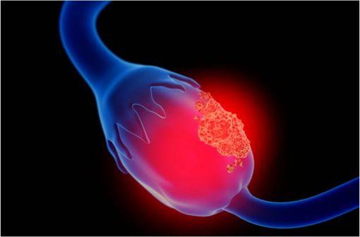 Représentation en 3D d'un cancer de l'ovaire (illustration).